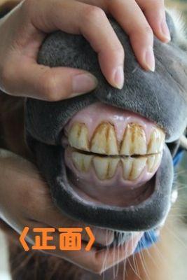 正面からの歯